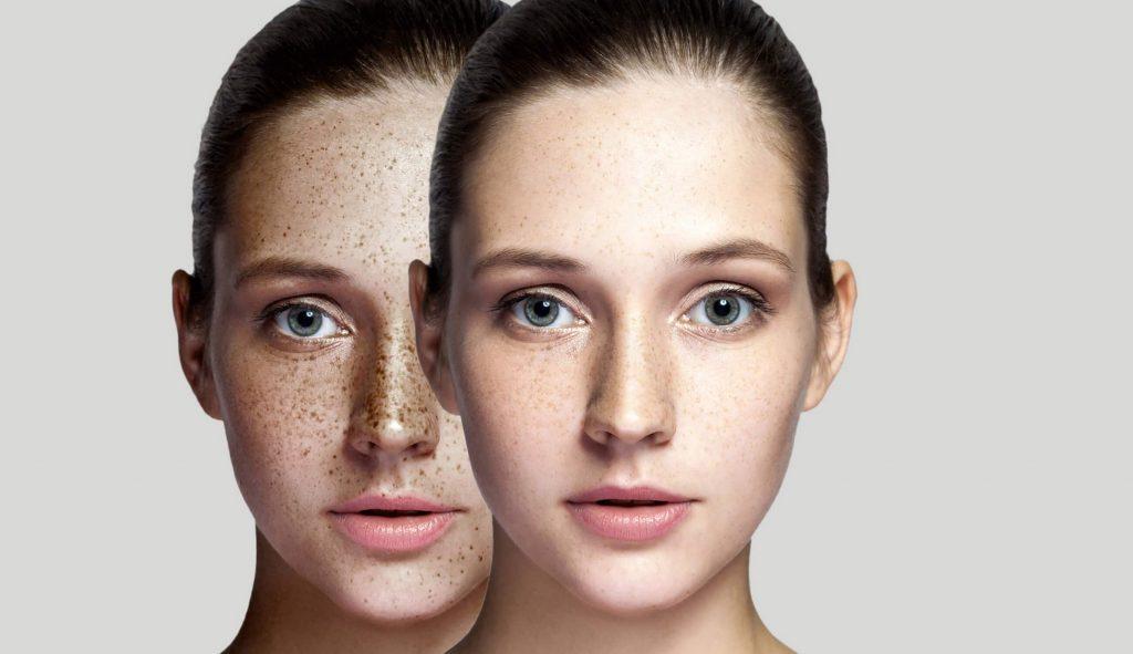 درمان قطعی لکه آفتاب بر روی پوست