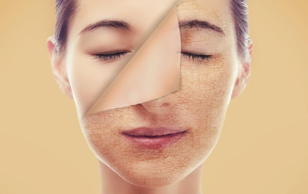 ۴ نشانه رطوبت کم پوست و روش های رفع آن