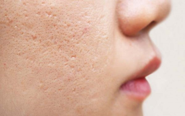 بررسی روتین منافذ باز پوست
