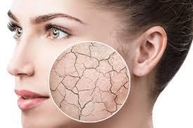 روش هایی عملی برای درمان پوست خشک و جوش دار