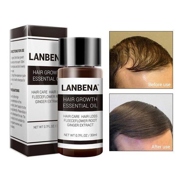 روغن رشد و تقویت مو لانبنا