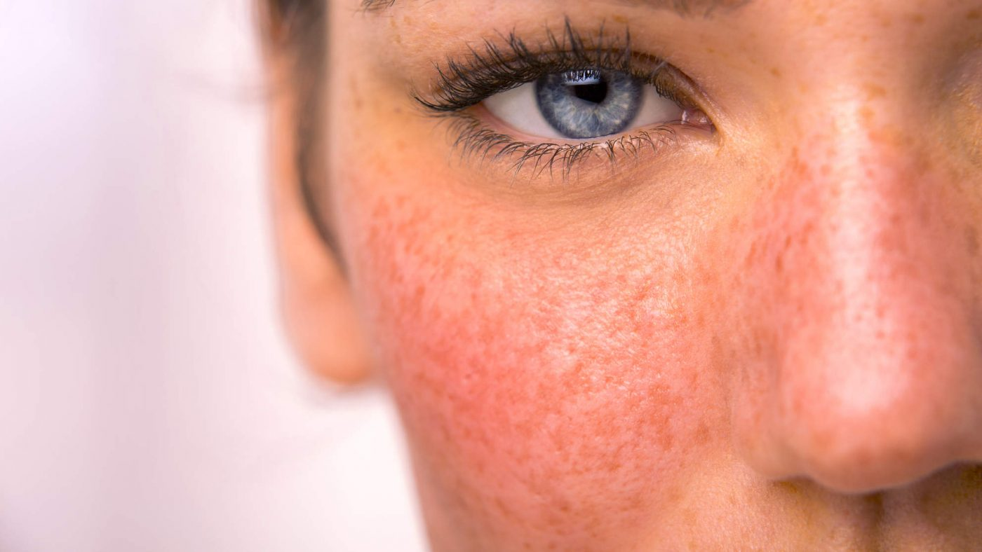 لک های قرمز روی پوست
