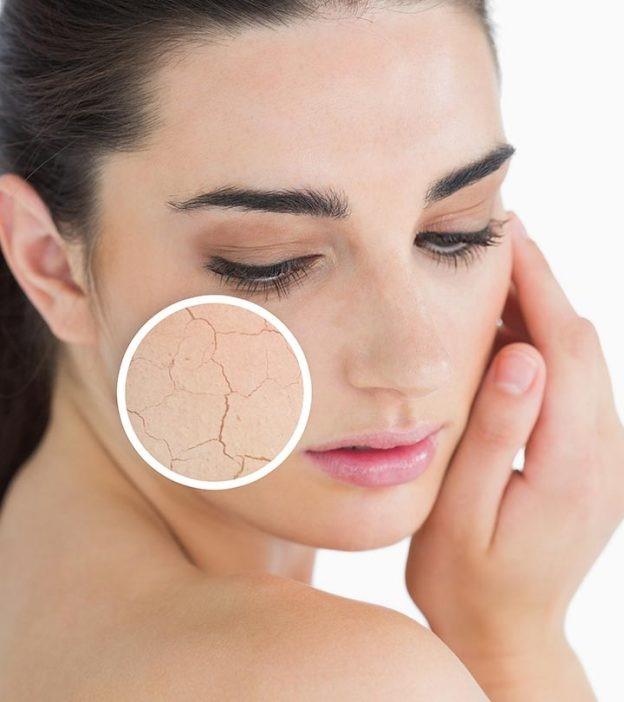 مراقبت از پوست خشک