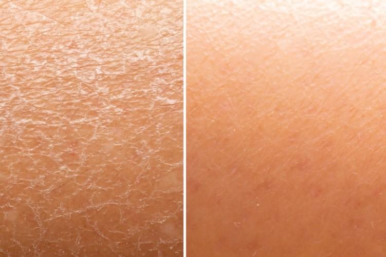 2 14 6 روش موثر در مراقبت از پوست خشک