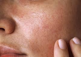 پوست چرب و مرطوب کنندهها