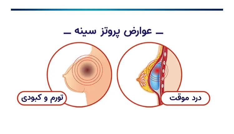 عوارض پروتز سینه چیست؟