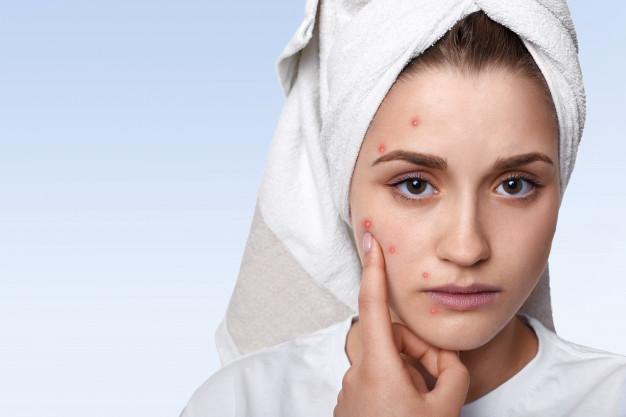مراقبت از پوست در فصل تابستان